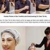 Thumb botox filler 3